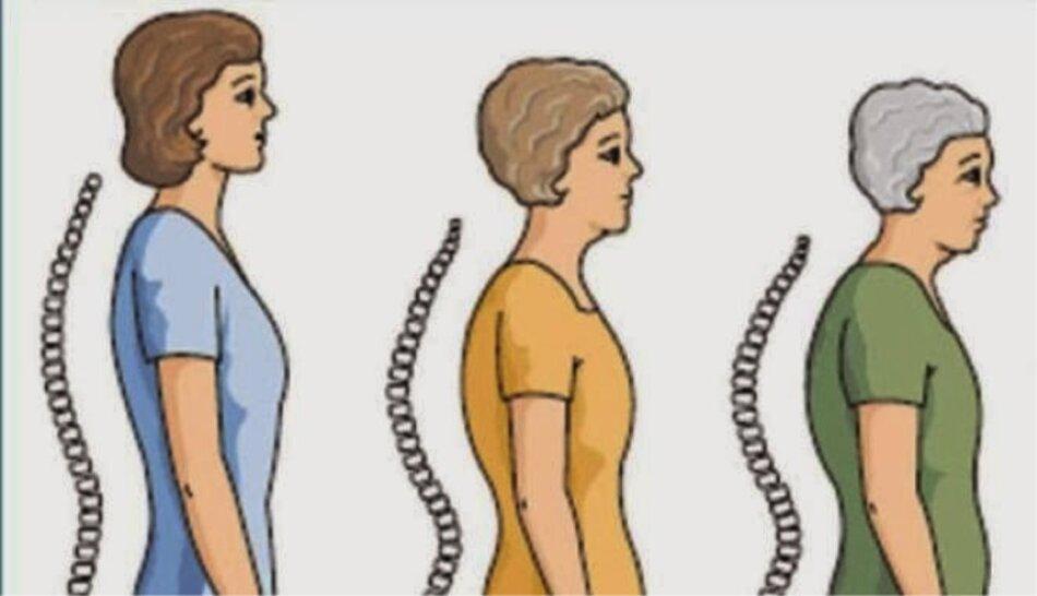 Gù lưng một trong những dấu hiệu loãng xương ở phụ nữ